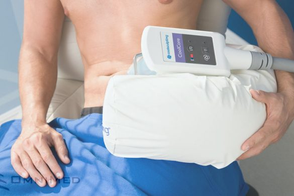 CoolSculpting bei OmniMed